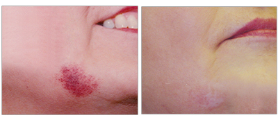 Birthmark on the chin treated with a laser at the Vein Center and CosMed.