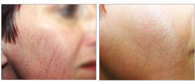 Learn about our rosacea and acne treatments at the Vein Center and CosMed.
