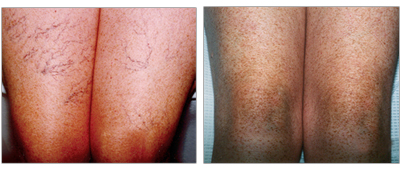 Vein Center and CosMed provides diagnosis and treatment for spider veins.