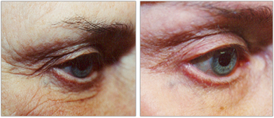 Skin tightening around the eyes and brow done by the Vein Center and CosMed.
