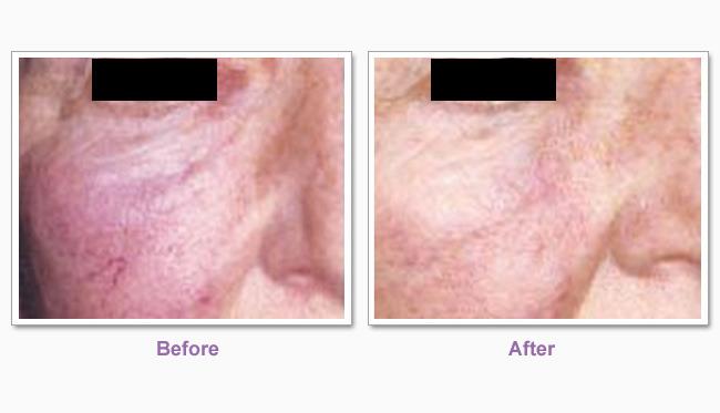 traitement cicatrice d'acnée 3 ans